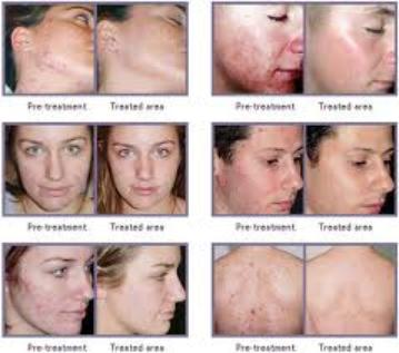 Bio oil facial